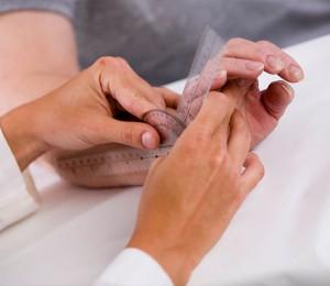 Rheumatoid Arthritis Clinical Research